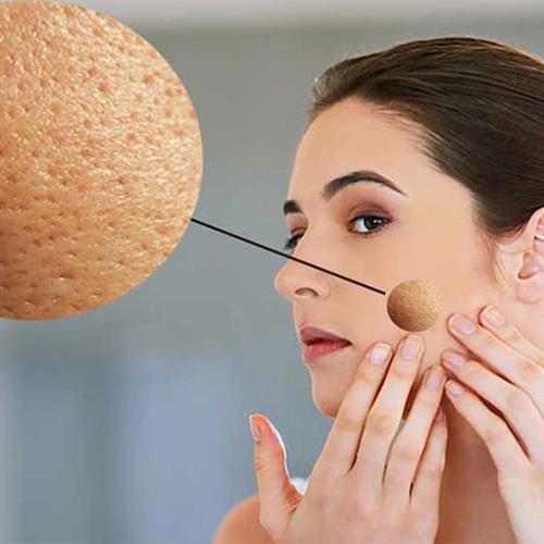درمان منافذ باز پوستی